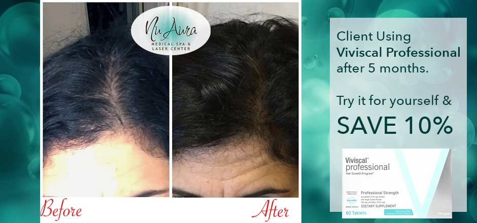 Viviscal for hair growth