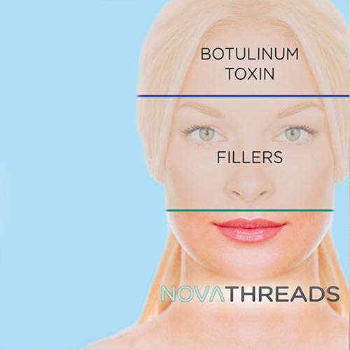 Novathreads non-surgical facelift